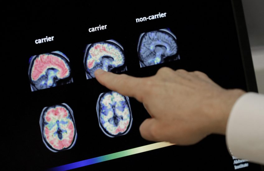 alteracion-degenerativa-demencias-alzheimer
